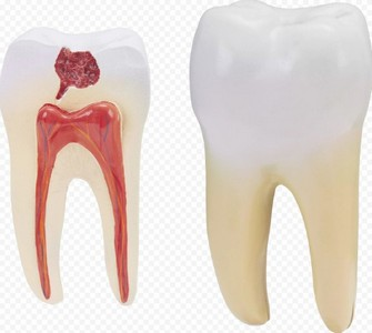 микробы на зубах