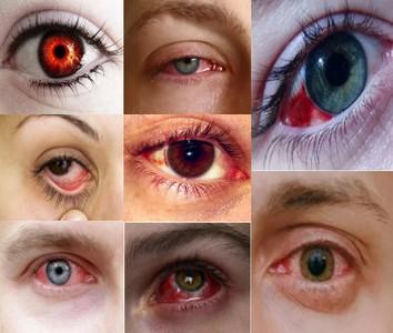 Синдром сухого глаз