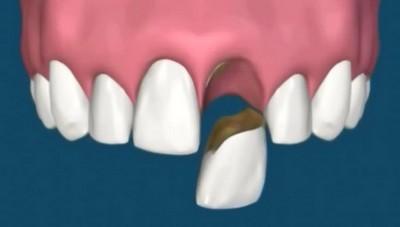 Еда которая разрушает зубы