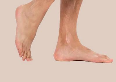 Неприятные ощущения в ногах человека