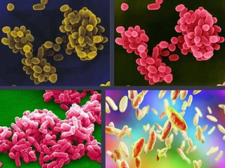 brucellosis bacteria