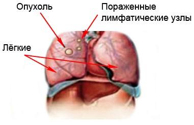 Опухоль в лёгких (метастаз лёгких)
