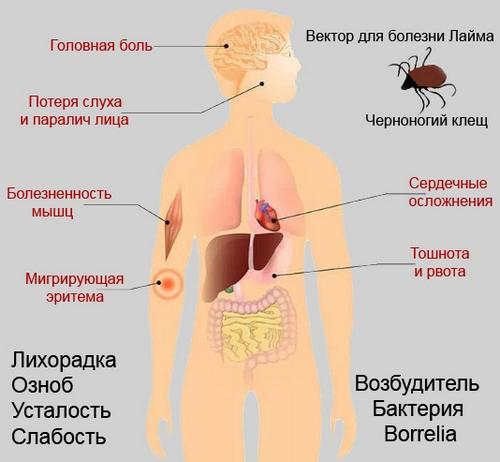 Вектор Болезни Лайма