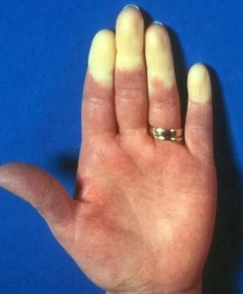Рейно пальцы