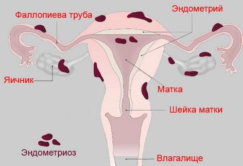 Эндометриоз матка