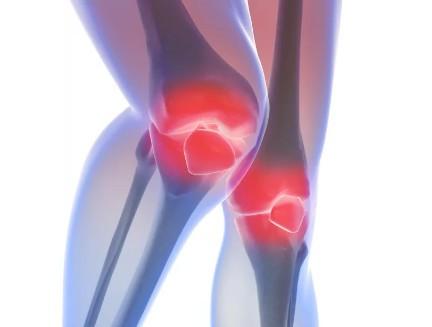 Ревматоидный артрит, колени