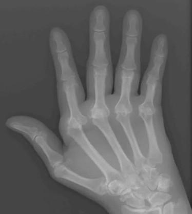 Ревматоидный артрит в пальцах