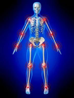 Ревматоидный артрит, все суставы