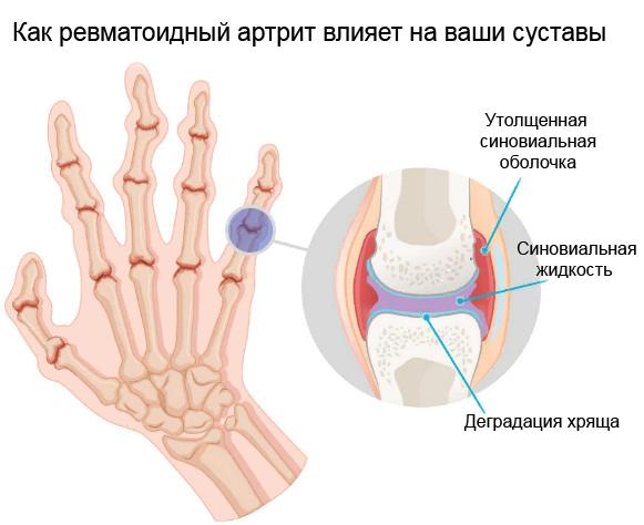 Как ревматоидный артрит влияет на ваши суставы